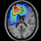 Gibin Brain Scan Image