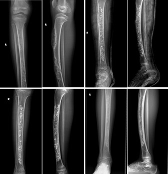 Bone graft X-rays