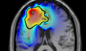 Brain scan image in colour showing activity on left side of brain